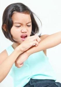 controlling eczema outbreaks