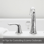 10 Tips for Controlling Eczema Outbreaks